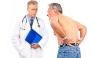 Является ли артроз причиной вашей боли в спине?