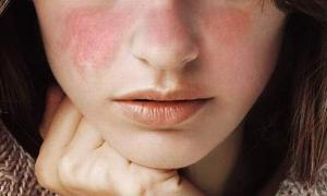 Волчанка — симптомы, причины, диагностика, лечение