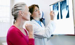 Ремиссия при псориатическом артрите