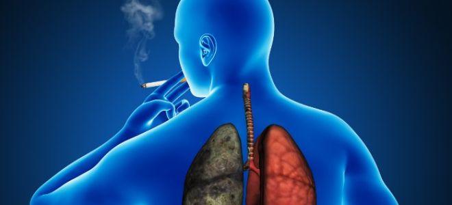 Курение усугубляет проявления анкилозирующего спондилита