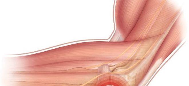 Травмы локтевого сустава