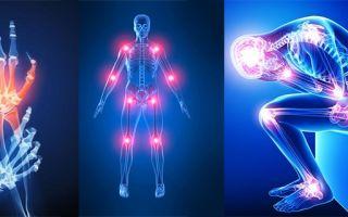 Что вызывает обострения артрита?