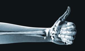 8 способов укрепить кости и сохранить их здоровыми
