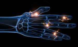 Понимание природы вспышек ревматоидного артрита