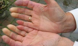Склеродермия — причины, симптомы, диагностика, лечение