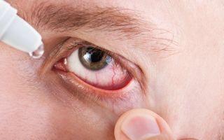 Синдром Шегрена — причины, симптомы, диагностика, лечение