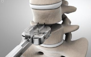 Имплантация искусственного диска как альтернатива сращиванию позвонков