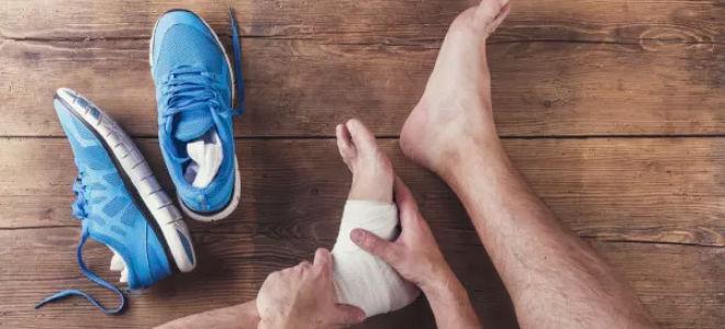 Псориаз и псориатический артрит повышают риск появления подагры