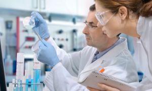 Ученые выявили причины генетической природы, повышающие риск заболевания волчанкой