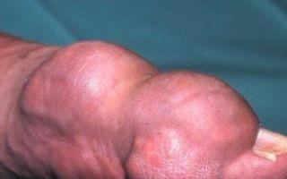 Псевдоподагра — Болезнь депонирования кристаллов пирофосфата кальция (БДПК)