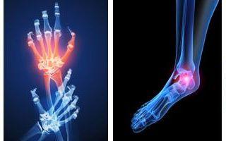 Реактивный артрит — симптомы, диагностика и лечение