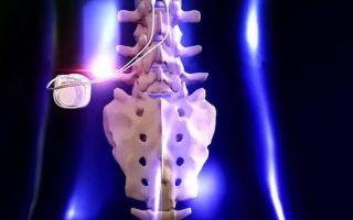 Инъекции и имплантаты, применяемые для облегчения боли в спине