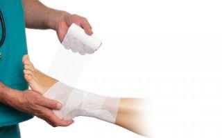 Тендинит — причины, симптомы, диагностика, лечение