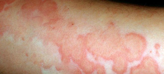 Васкулит — причины, симптомы, диагностика, лечение