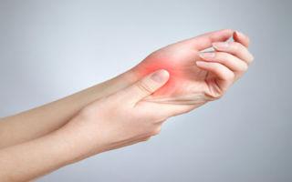 Миозит — причины, симптомы, диагностика, лечение