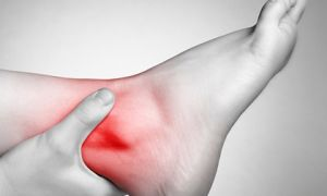 Артрит и другие заболевания голеностопа