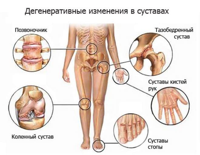 Дегенеративные изменения в суставах