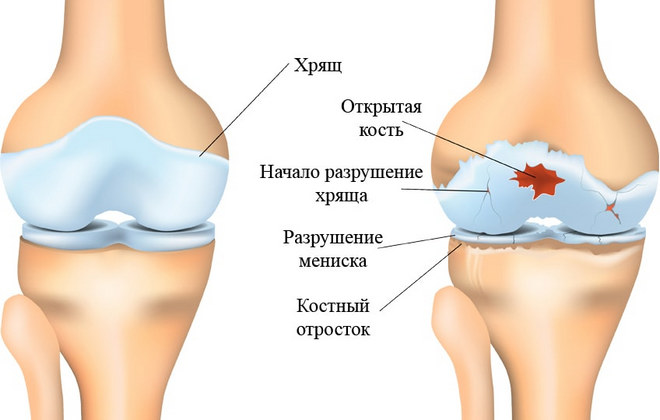 Дегенеративный артрит