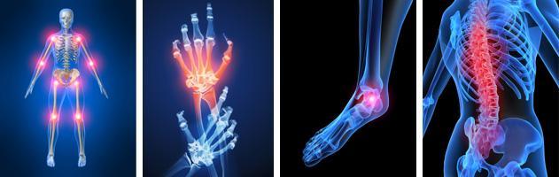Лечение ювенильного идиопатического артрита -