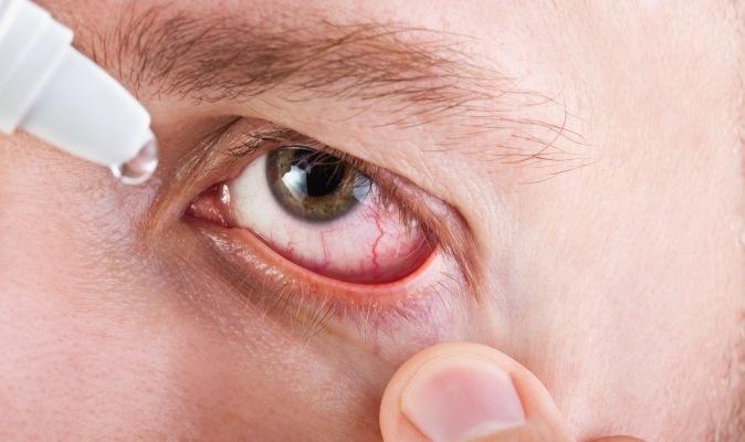 Сухость глаз при синдроме Шегрена