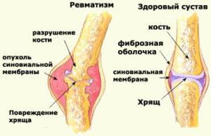 Ревматизм - разрушение сустава