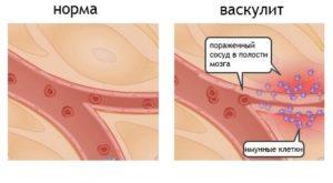 Васкулит - поражение кровеносных сосудов мозга