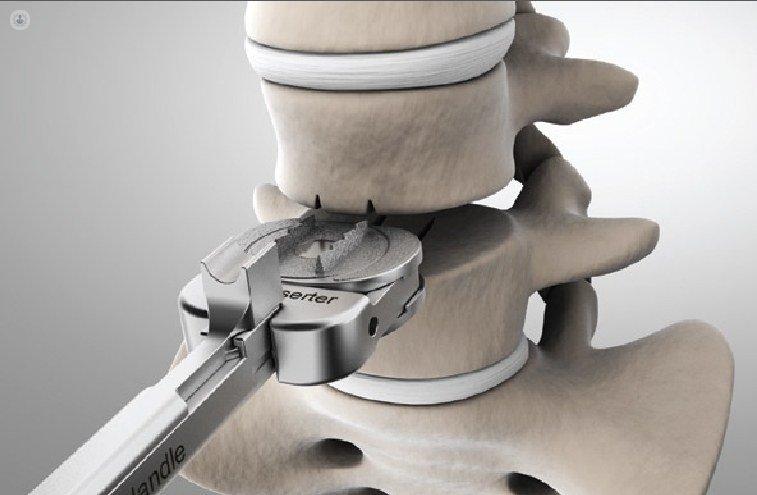 Имплантация искусственного межпозвоночного диска